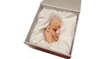 3D Ultrasound of baby