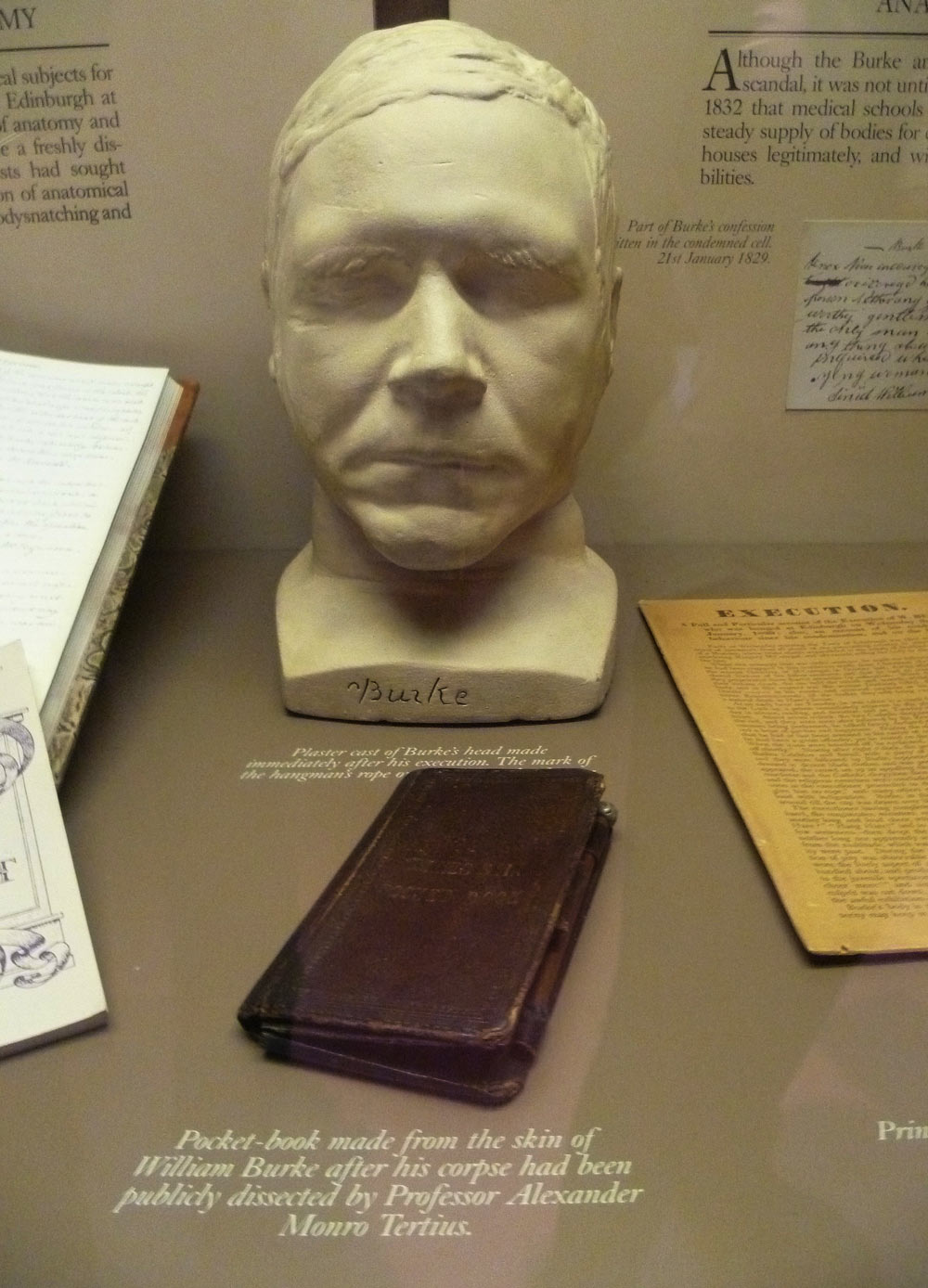 William Burke's death mask and pocket book, Surgeons' Hall Museum, Edinburgh