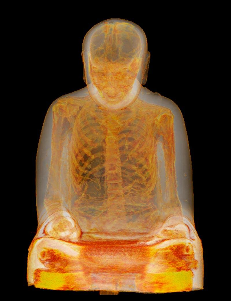 CT Scan of the Mummified Monk