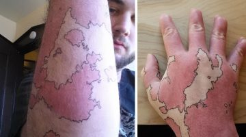 Birthmark-Map-Header
