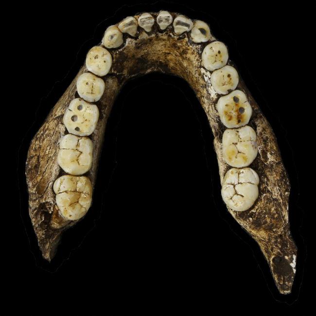 nadeli-teeth