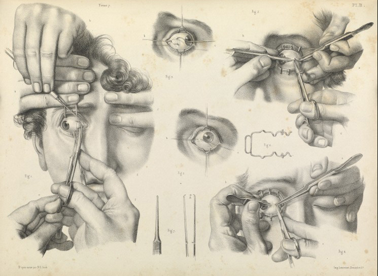 Surgery to correct crossed eyes