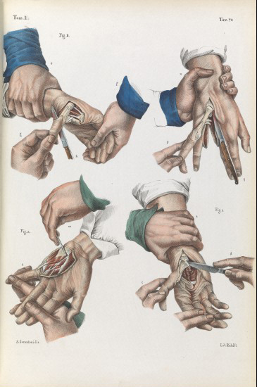 Amputation of the finger and thumb