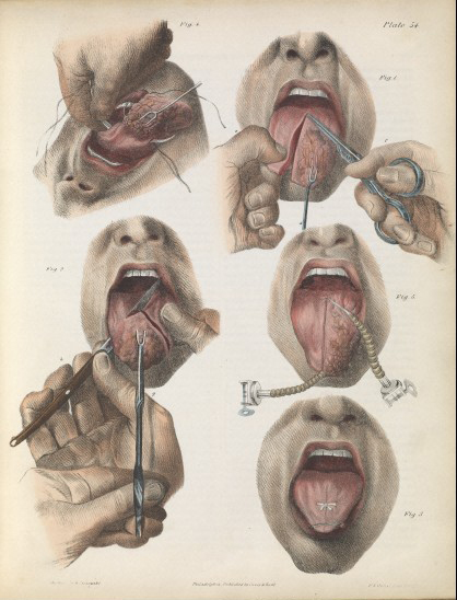 Removing tongue cancer