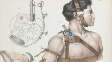 surgical illustrations