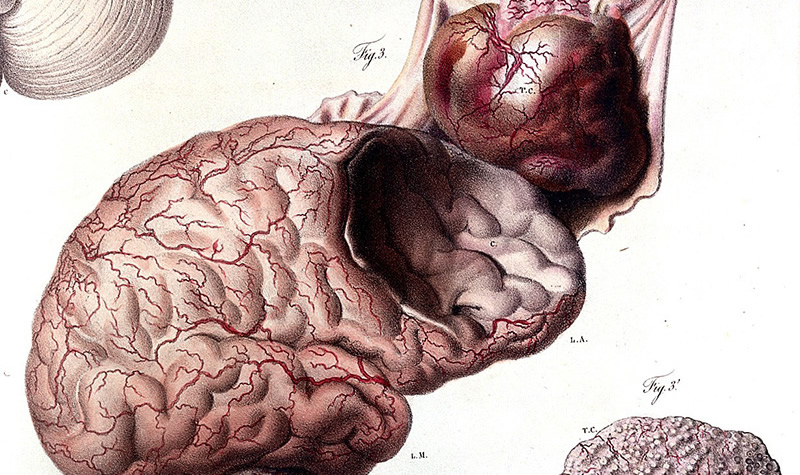 Impressive 19th Century Illustrations Of Disease