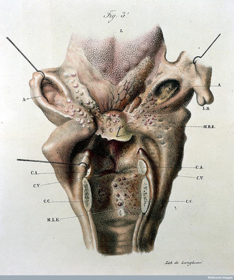 19th-Century Illustrations