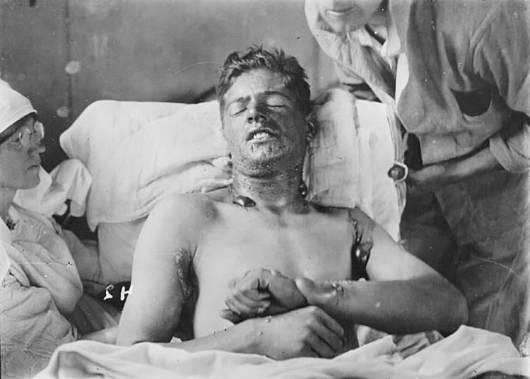 mustard gas wounds