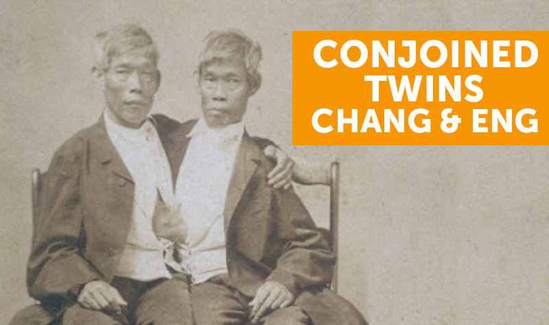 conjoined twins chang and eng