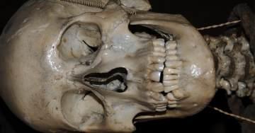 John Horwood Skull