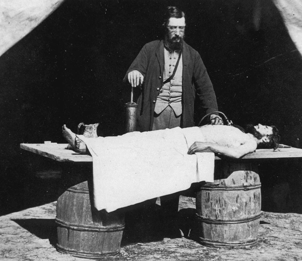 civil war embalming