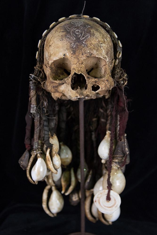 midwife skull