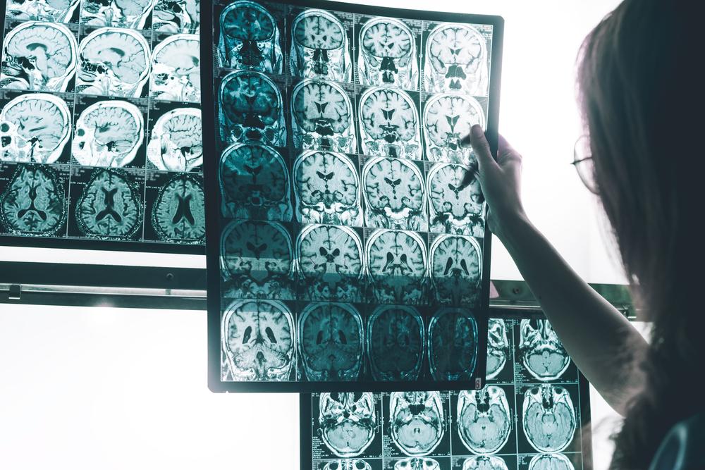 alzheimer's mri scans