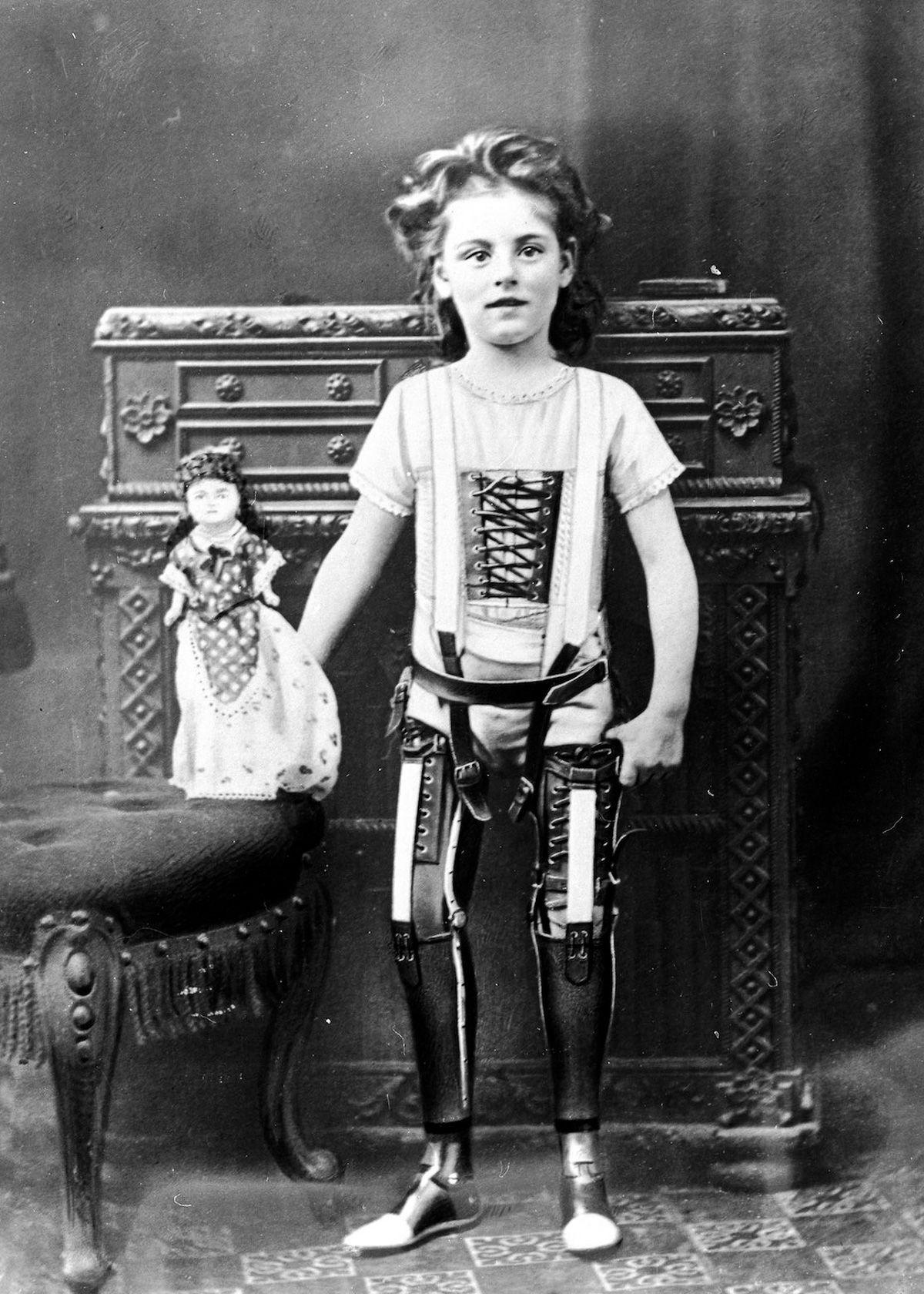 gillingham prosthetic