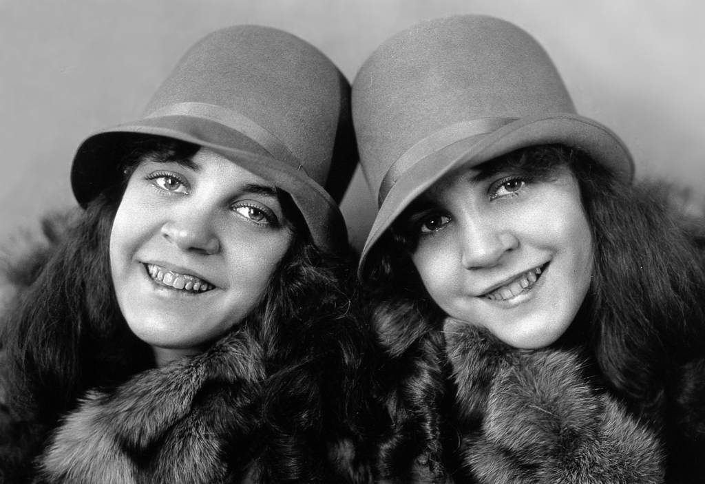 Daisy and Violet Hilton